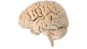 hersenen_1100_30