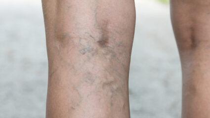 spataderen op benen