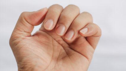 geribbelde nagels